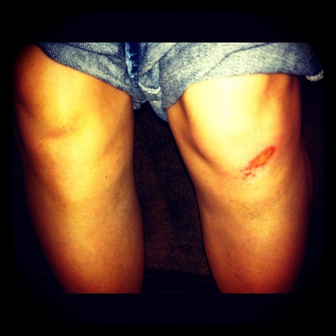 Leigh's Knees